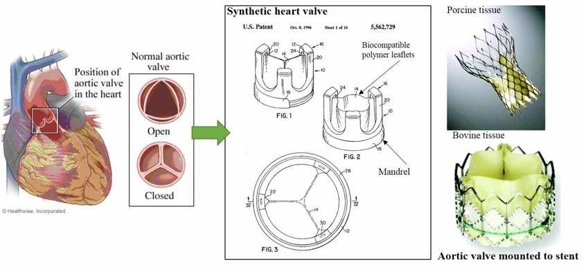 Evolution of aortic valve replacement